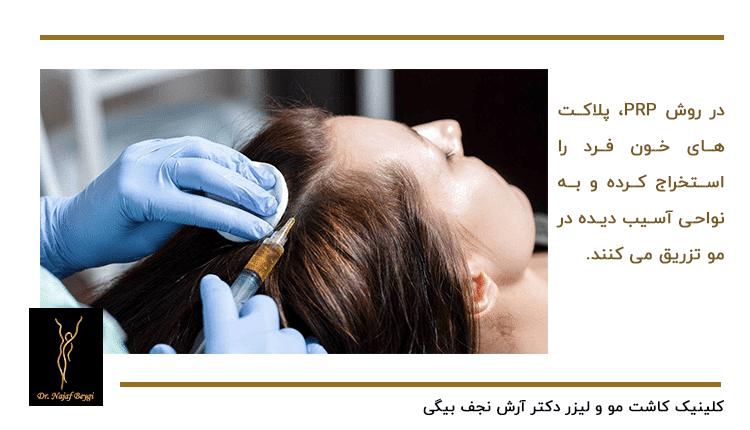 تزریق PRP به سر زن مراجعه کننده که دارای ریزش مو است