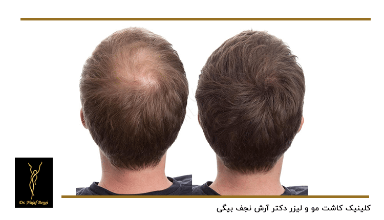 قبل و بعد از کاشت مو به روش SUT