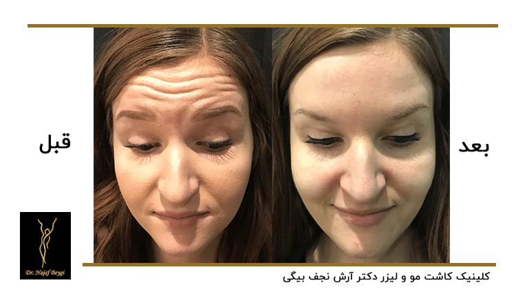 قبل و بعد از تزریق بوتاکس برای خانم جوان