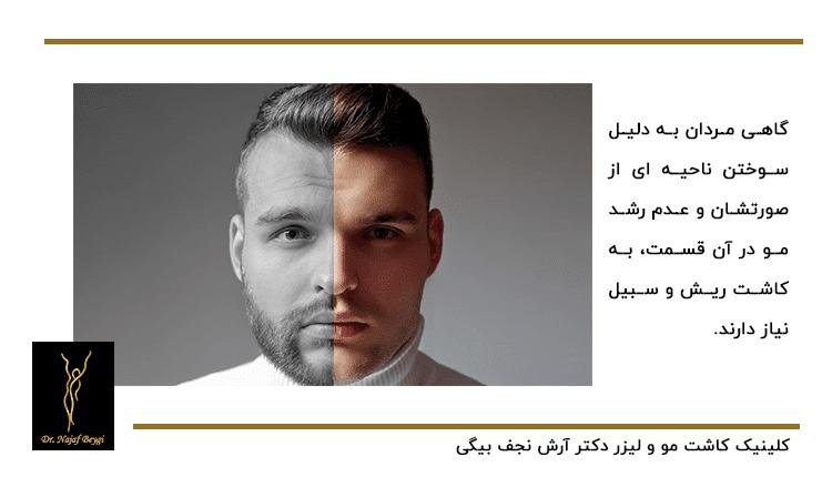 تفاوت داشتن سبیل و ریش در چهره مردان