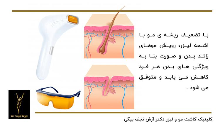 دستگاه لیزر دستی که باعث تضعیف ریشه های مو و توقف رشد موهای زائد بدن می شود