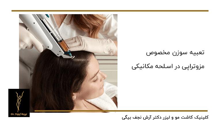 مزوتراپی موی سر توسط پزشک ماهر