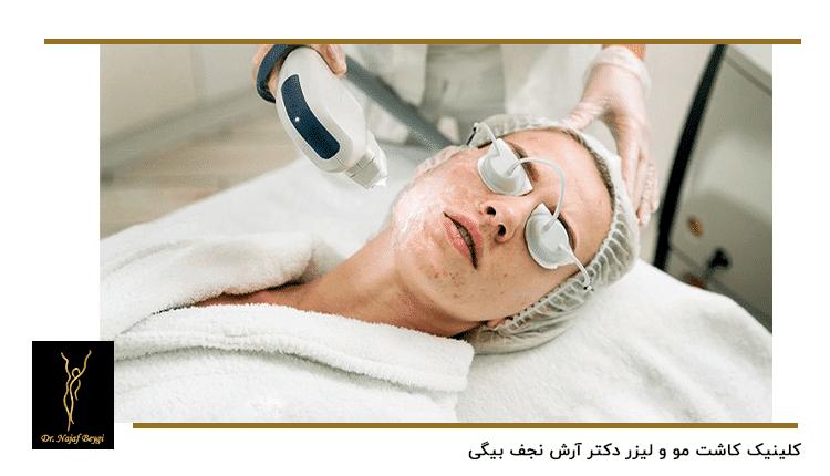 یک خانم در حال از بین بردن جوش های صورت با لیزر