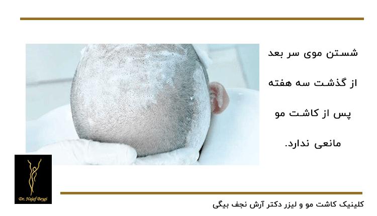 شست و شوی سر بعد از کاشت مو از مرقبت های مهم بعد از عمل کاشت مو