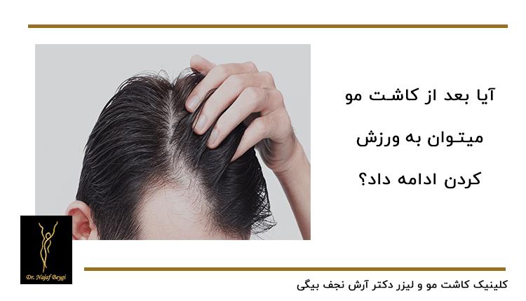 ورزش کردن بدون منع بعد از عمل کاشت مو