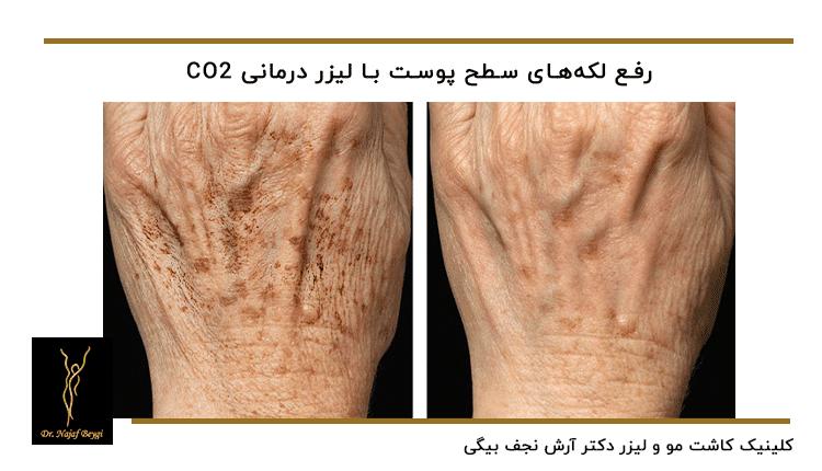 قبل و بعد از درمان لک های روی دست برای جوانسازی دست ها