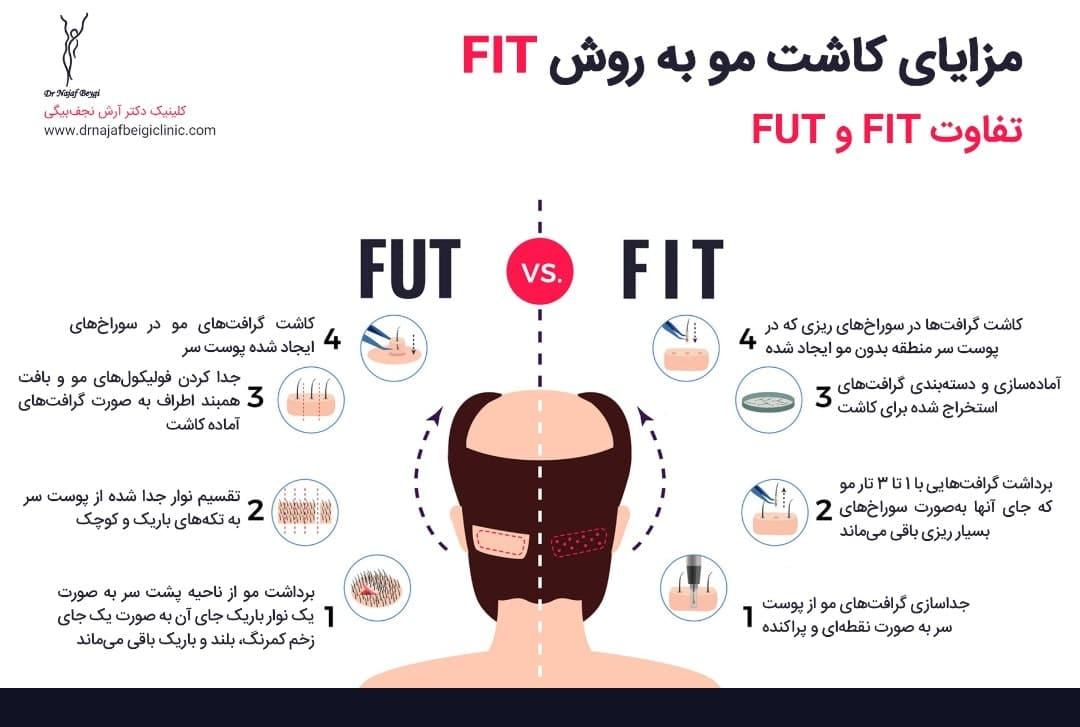 مزایای کاشت مو به روش FIT