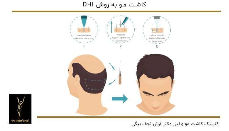مراحل کاشت مو به روش DHI