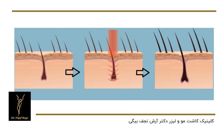 چرخه سه مرحله ای رشد مو