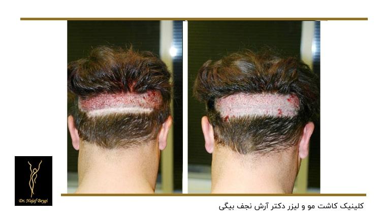 کاشت مو در ناحیه پشت سر
