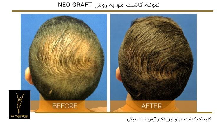 نمونه کاشت مو به روش NEO GRAFT