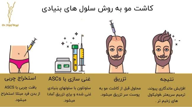 مراحل کاشت مو به رش سلول های بنیادی