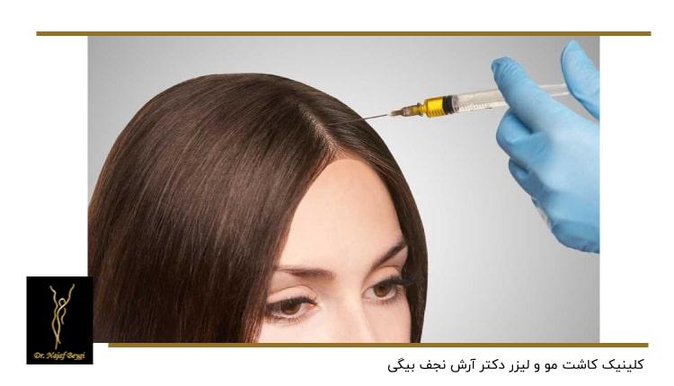 تزریق به پوست سر یک زن