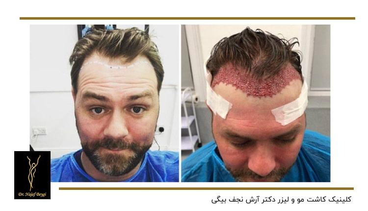 نمونه قبل وب بعد از ایمپلنت موی سر