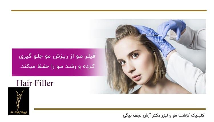 جلوگیری فیلر مو از ریزش مو و حفظ رشد آن
