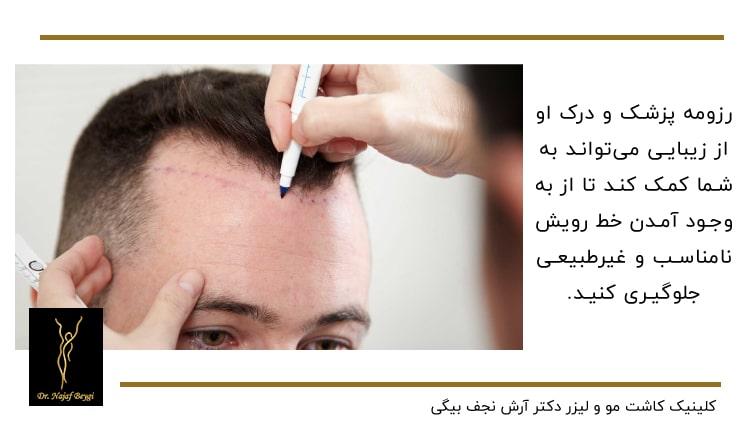 طراحی خط رویش مو توسط پزشک