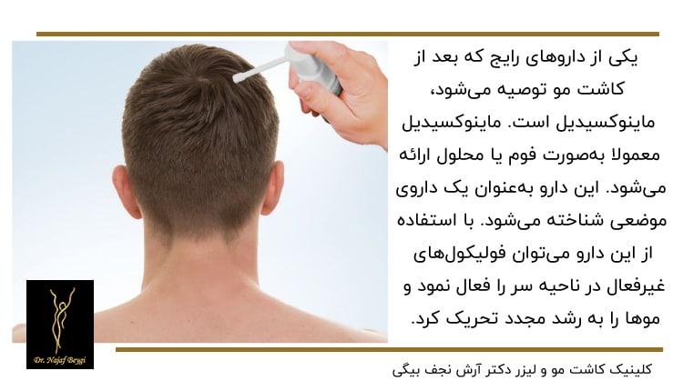 استفاده از ماینوکسیدیل برای موی سر
