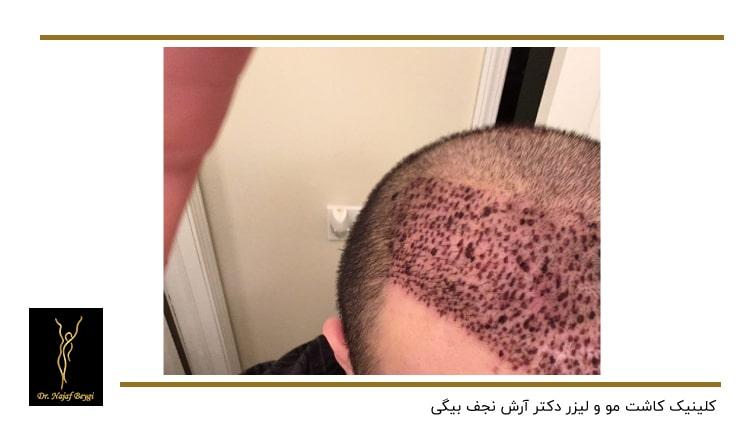زخم های بعد از کاشت مو