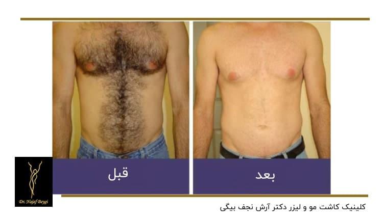 نمونه لیزر موهای زائد بدن