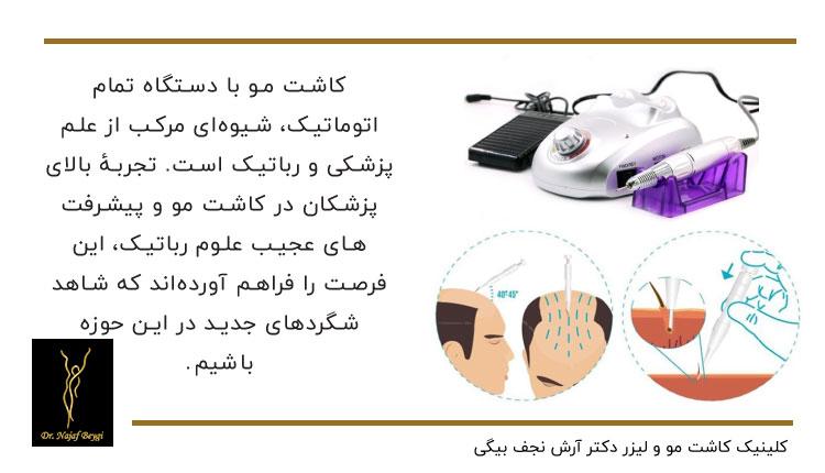 کاشت مو با دستگاه تمام اتوماتیک شیوه ای مرکب از علم پزشکی و رباتیک می باشد
